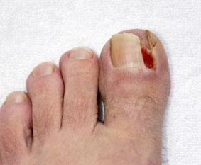 ingrown toenail
